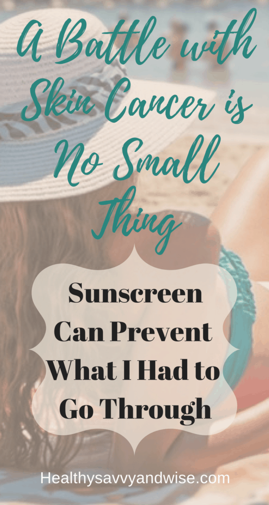 Skin cancer is no small thing